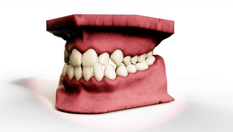 Λύστε τα ζωνάρια και… σφίξτε τα δόντια!